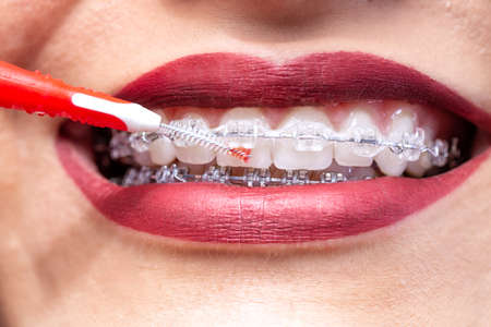 Proxabrush for in between teeth area hygiene, braces concept