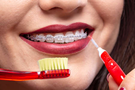 Toothbrush and proxabrush maintaining a beautiful smile with clean braces
