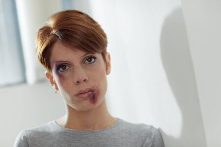 portrait of young caucasian woman being abused. Horizontal shape, front view, copy space photo