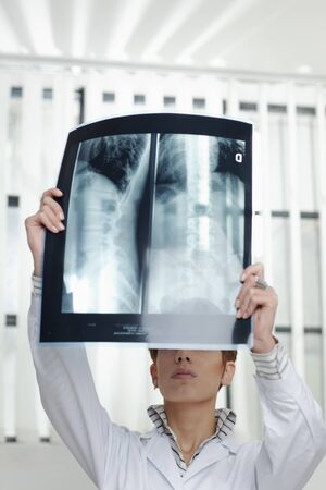 vertebrae view: cropped view of caucasian woman looking at x-ray picture of backbone. Vertical shape, front view