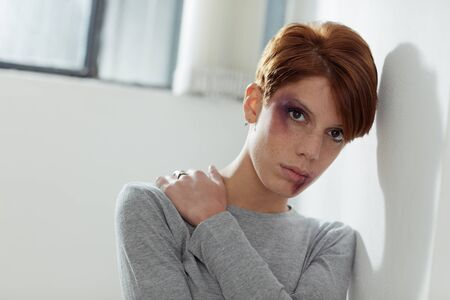 portrait of young caucasian woman being abused. Horizontal shape, front view, copy space Stock Photo - 8377849