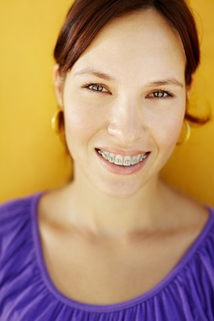 yellow teeth: portrait of young caucasian college student with braces, smiling at camera. Vertical shape, copy space