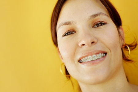 orthodontic: portrait of young caucasian college student with braces, smiling at camera. Selective focus, copy space