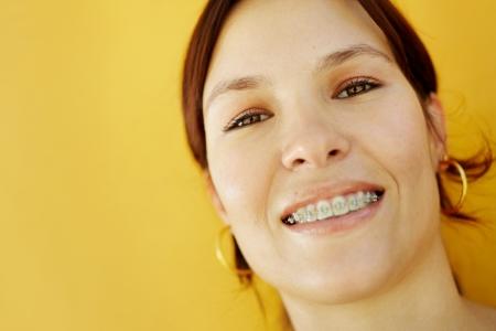 orthodontics: Retrato de joven cauc�sica universitaria con llaves, sonriendo a la c�mara. Enfoque selectivo, espacio de copia