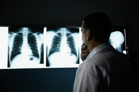 cancer x ray: Male doctor at work in public medical clinic and examining x-ray plates of bones, skull and lungs