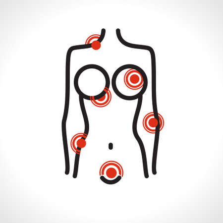 Schematic female figure. Abstract illustration of female pain. The asymmetric line depicts a female body with various types of pain red dots. Vector illustration. 일러스트