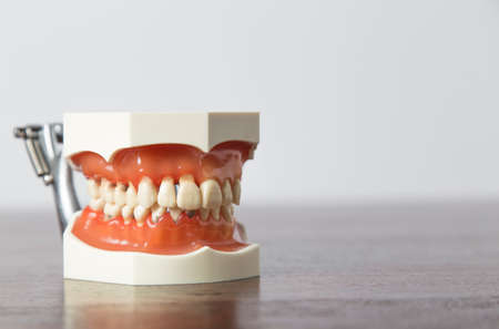 dentures: Close up view of dentures model sitting on desk for teaching concepts about dentistry Stock Photo