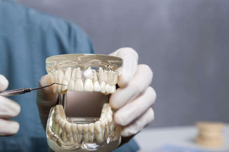 prosthodontics: Dental cleaning instruction demonstration using transparent model of human teeth using metal probe with copy space Stock Photo