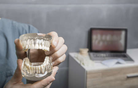 prosthodontics: Gloved hands of man showing the a transparent model of human gums and teeth with laptop and desk in background
