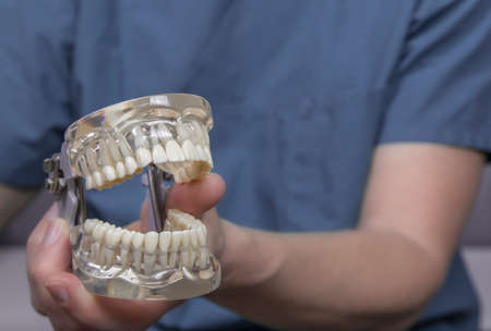molars: Close up of hand holding clear plastic mold with complete set of human teeth used for teaching dentistry