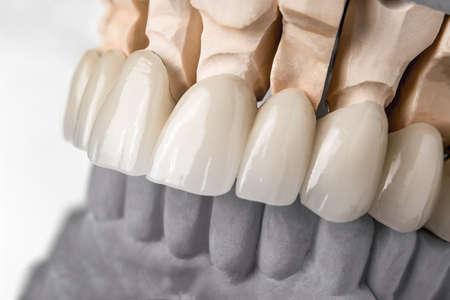 Close-upmening van tandlay-out van hogere rij van tandenprothesis op kunstmatige kaak, medisch concept