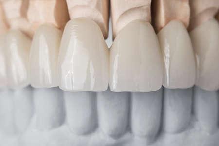 医療コンセプト人工顎の歯の補綴物の上段の歯科レイアウトのクローズ アップ ビュー