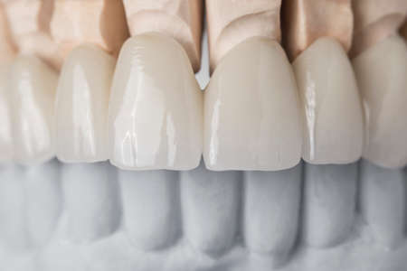 Nahaufnahme der zahnärztlichen Anordnung der oberen Reihe der Zähne Prothese auf künstlichen Kiefer, medizinisches Konzept Standard-Bild - 73746870
