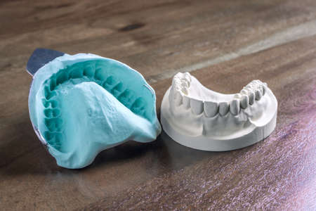Plaster cast molds of the upper and lower jaws and teeth with a pliable imprint in a dental laboratory for the manufacture of a set of dentures or false teeth