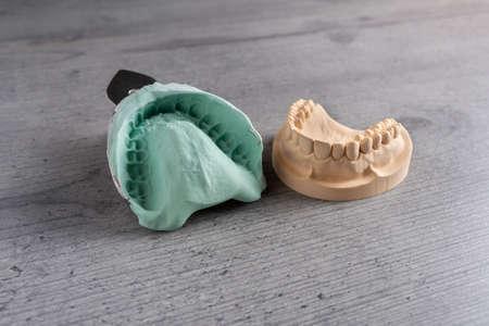 Gipsabgüsse von Ober- und Unterkiefer und Zähnen mit biegsamem Abdruck in einem Dentallabor zur Herstellung von Zahnersatz oder Zahnersatz Standard-Bild