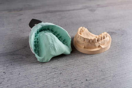 Plaster cast molds of the upper and lower jaws and teeth with a pliable imprint in a dental laboratory for the manufacture of a set of dentures or false teeth Stock Photo