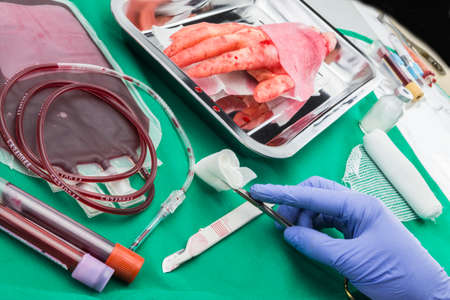 cardiosurgery: Unit of concentrate of red blood cells, Hemostatic Kocher forceps, transplantation of upper limb in a surgery room