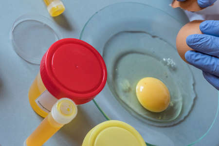 Scientist at laboratory investigates the crisis caused by the fraud of the contaminated eggs with fipronil in Spain Banco de Imagens