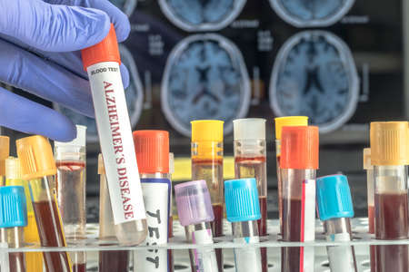 Scientist holds blood sample to investigate remedy against Alzheimers disease, conceptual image