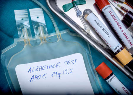 blood sample to investigate remedy against Alzheimers disease, conceptual image