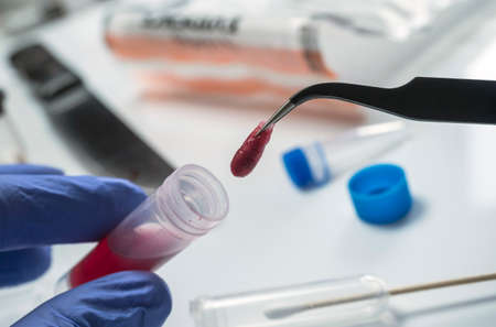 Police expert extracts traces of blood in a swab for analysis in the laboratory scientist Stock Photo