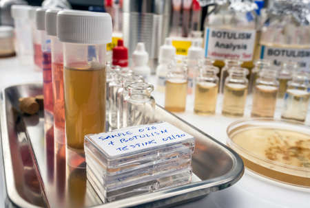 Samples contaminated by Clostridium botulinum toxin that causes botulism in humans, laboratory research, conceptual image Banque d'images