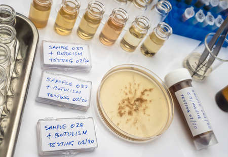 Samples contaminated by Clostridium botulinum toxin that causes botulism in humans, laboratory research, conceptual image Stock Photo