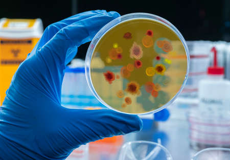 Scientist examines malaria virus on petri dish in laboratory, conceptual image