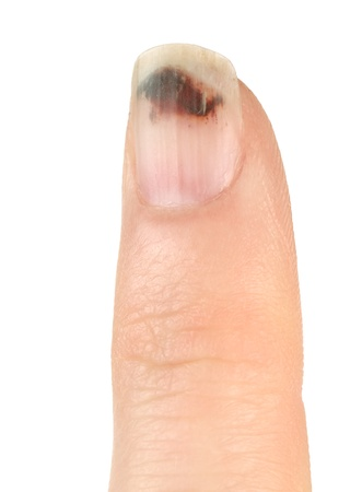 chafe: Finger with Bruised Nail (Subungual Hematoma) on White Background) Stock Photo