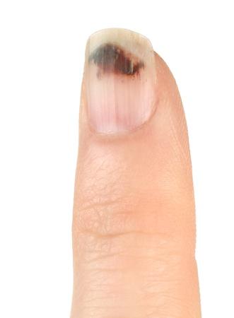 gory: Finger with Bruised Nail (Subungual Hematoma) on White Background) Stock Photo
