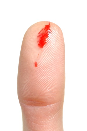 fingertip: Bleeding from Cut Finger