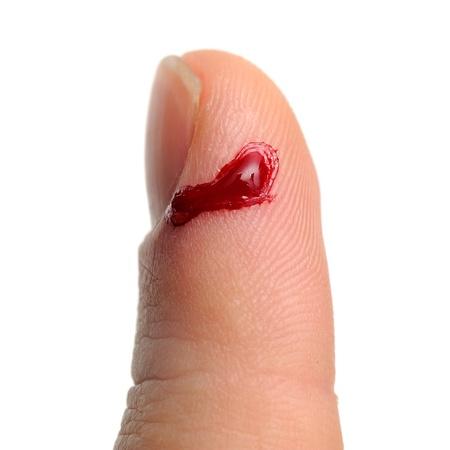 hemorragias: Sangrado por corte en el dedo