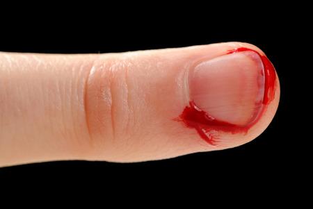hemorragias: Sangrado de corte en el dedo