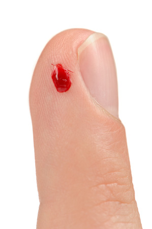 An index finger with a drop of blood from a small cut against a white  photo