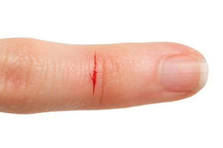 lesionado: Dedo Cortar con Sangre Foto de archivo