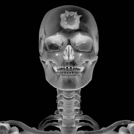 homo: 3D Radiograph with head injury Stock Photo