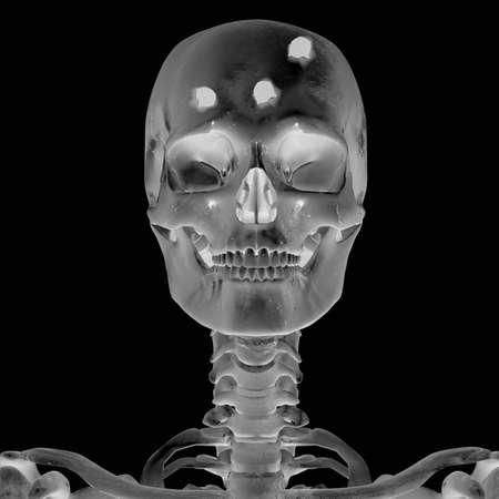 radiograph: 3D Radiograph with head injury Stock Photo