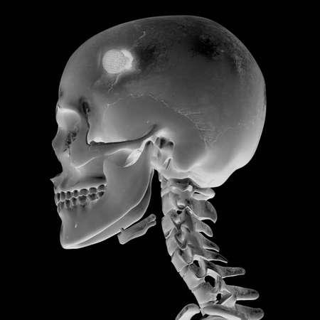 head injury: 3D Radiograph with head injury Stock Photo
