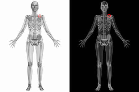 clavicle: Human Anatomy Body - Broken Left Clavicle Stock Photo