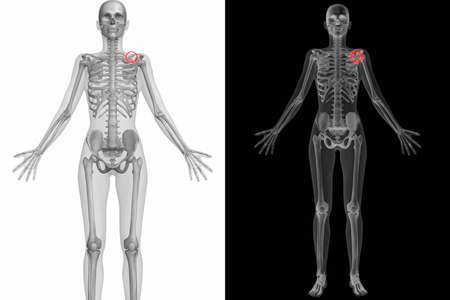 scapula: Human Anatomy Body - Broken Left Scapula