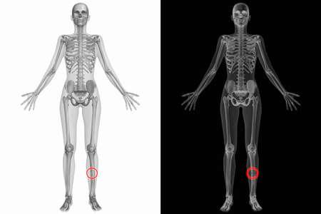ulna: Human Anatomy Body - Broken Left Ulna