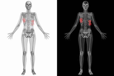 人体解剖学ボディ - 壊れた肋骨 写真素材