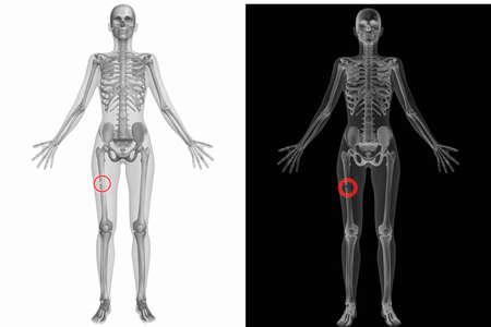 femur: Human Anatomy Body - Broken Right Femur Stock Photo