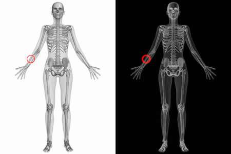 sapiens: Human Anatomy Body - Broken Right Radius Stock Photo