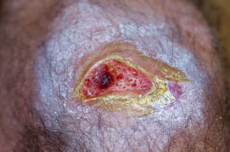 granulation: Open knee wound showing red granulation tissue and some peripheral scabs