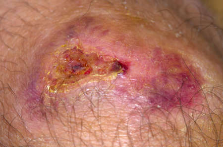 Knee wound healing with new skin and new scabs  Stock Photo