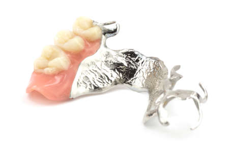 Removable partial denture Standard-Bild