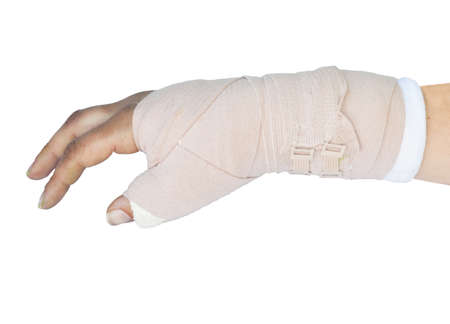 broken wrist in a cast on a white background