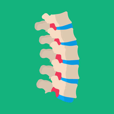 Human vertebrae lumbar backache illness patient vector icon. Skeletal sick spine back bone column disc medical