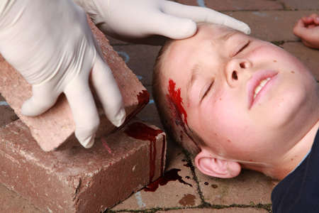 head injury: A boy lying down with blood on his head from an injury and helping hands with gloves nearby. Stock Photo